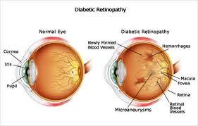 Diabetic ret
